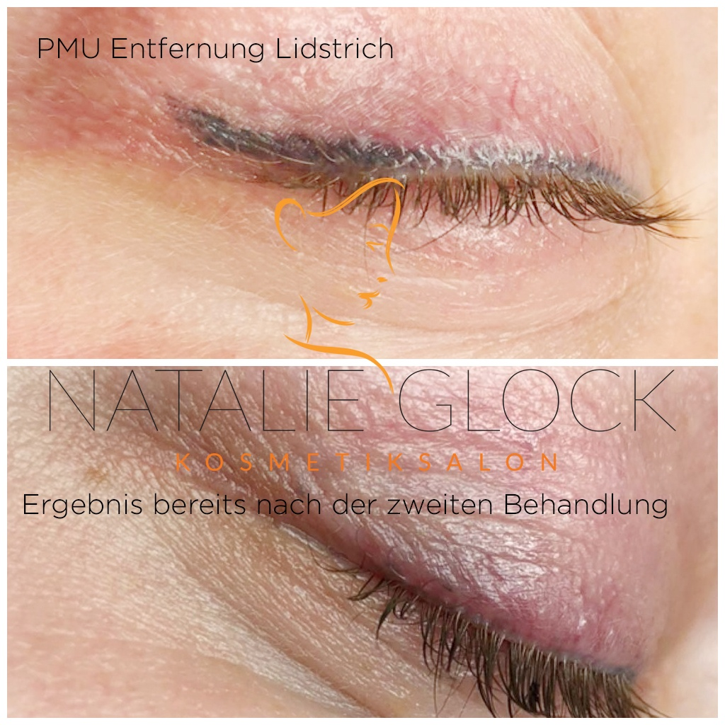 Permanent Make-up Entfernung Lidstrich