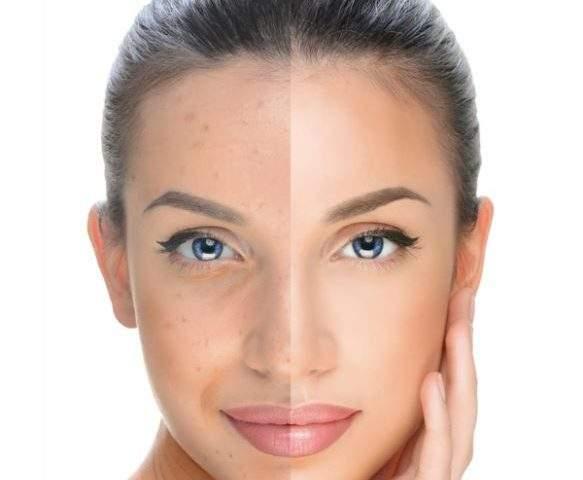 bb-glow-anti-aging