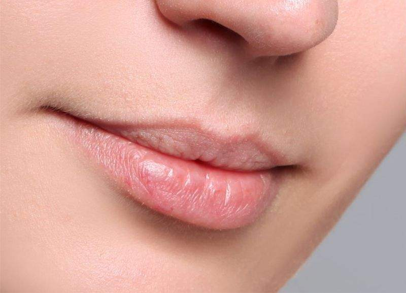 lippen davor